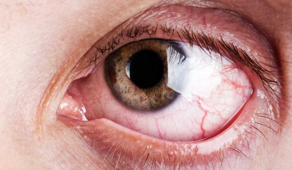 Especialista en ojo seco en Tijuana