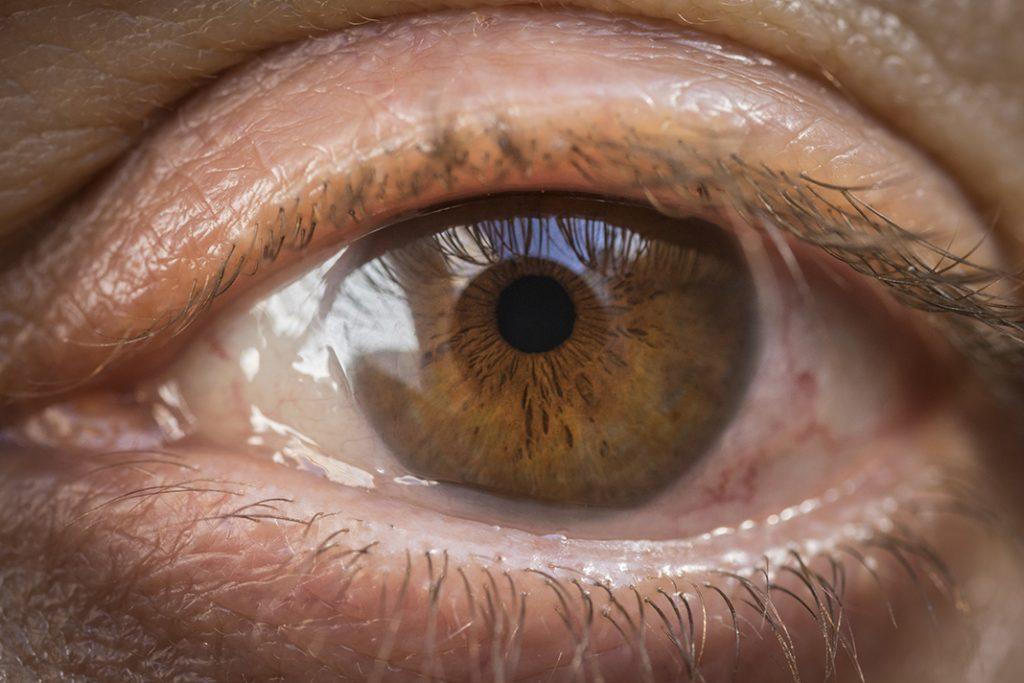 Especialista en carnosidad ocular en Tijuana